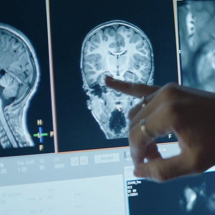 Brain scan pinky point