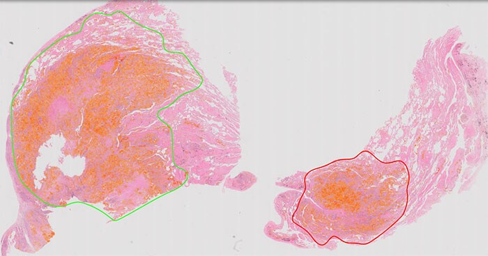 Philips IntelliSite Pathology Solution for clinical use